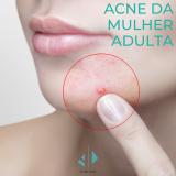 mulher com acne da mulher adulta
