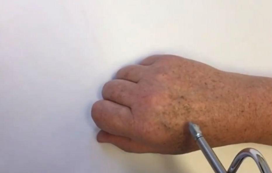 Dermatologista Curitiba - Dr. André Lauth - Crioterapia com nitrogênio líquido