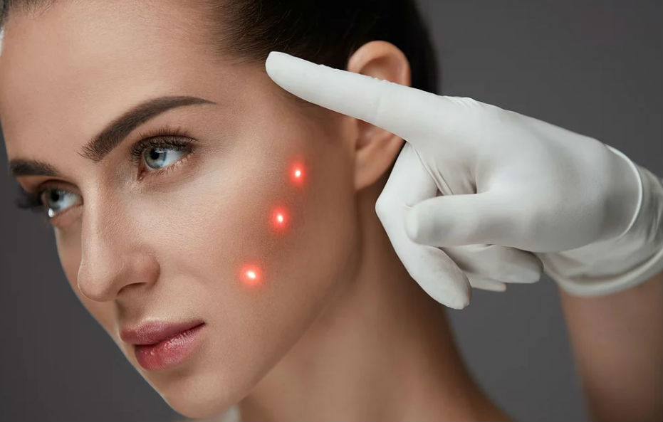 Laser fracionado - CO2 - Dermatologia Curitiba - Dr. André Lauth