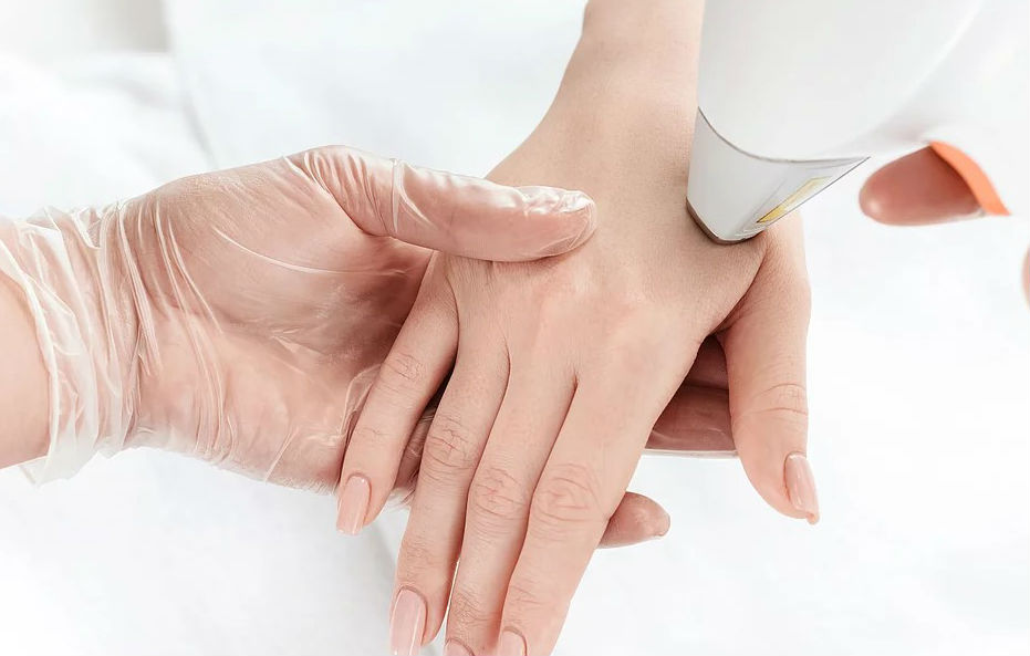 Luz Pulsada em Curitiba - Dermatologia