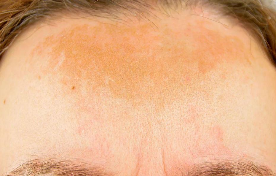 Dermatologista Curitiba - Dr. André Lauth - Tratamento de Melasma