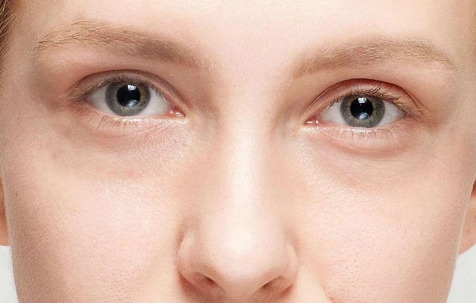 Dermatologista em Curitiba. Preenchimento de olheiras. Clareamento de olheiras.