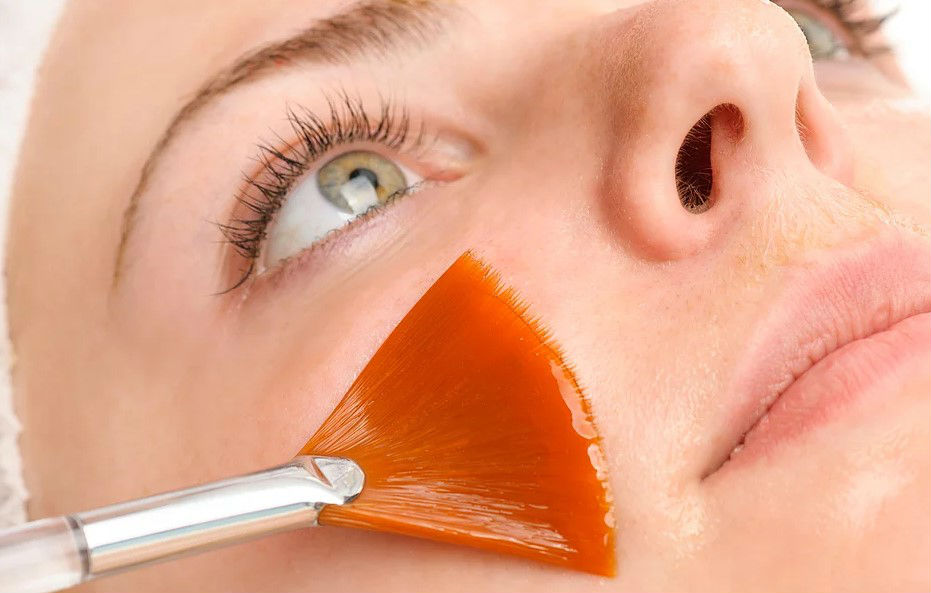 Dermatologista Curitiba - Dr. André Lauth - peeling químico