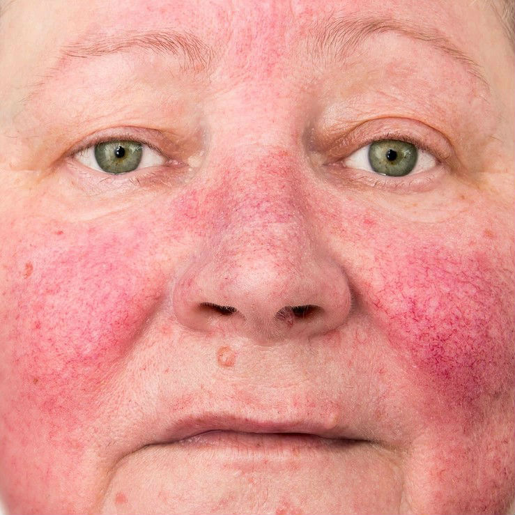 TOXINA-BOTULNICA-no-tratamento-de-roscea.jpg