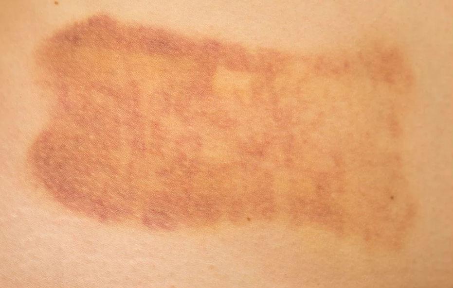 Dermatologista Curitiba para tratar erros estéticos